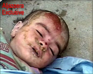 Iraqi child, victim of US attack on Falluja